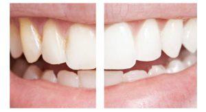 blanchement-des-dents